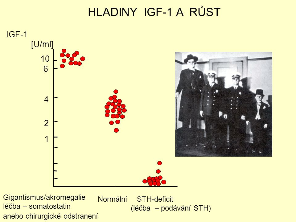 HLADINY IGF-1 A RŮST IGF-1 [U/ml] 10 6 4 2 1 Gigantismus/akromegalie